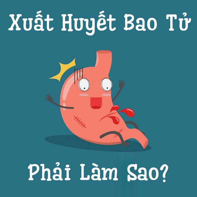 Xuat Huyet Bao Tu
